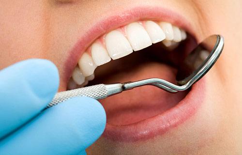 dental-filling-richmond